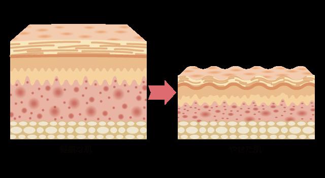 肌の菲薄化(肌やせ)